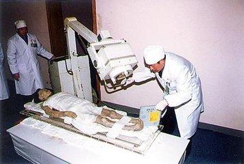 研究和鉴定女尸