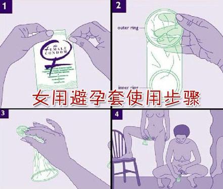 女用隐形避孕套使用方法